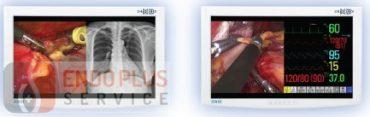 NDS Radiance 24 HD képalkotó medikai monitor