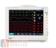 COMEN NC12 Moduláris betegőrző monitor - STANDARD PARAMÉTREK MÉRÉSE
