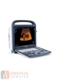 SONOSCAPE S2 - Hordozható ultrahang készülék